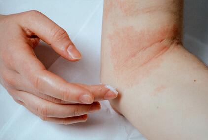 allergie rougeur et démangeaison