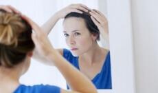 Soin des cheveux : comment se débarrasser des pellicules et des squames ?